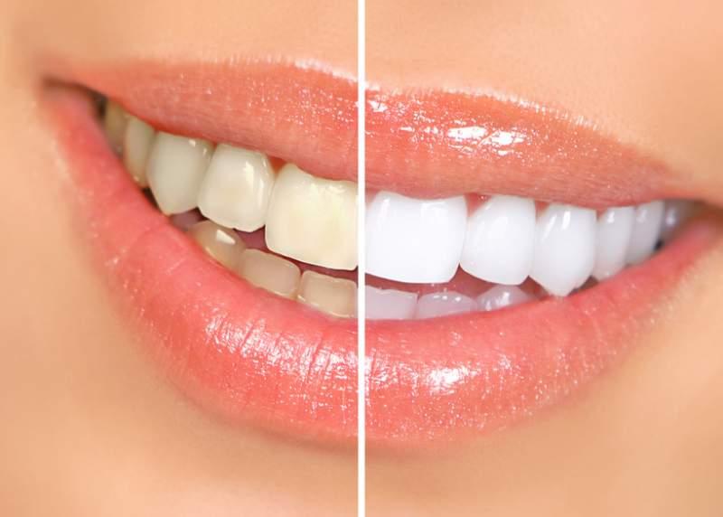 Pedido Blanquemiento dental